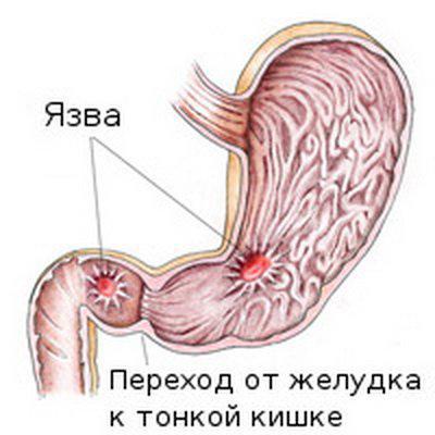 Язва желудка: лечение, операция, удаление язвы желудка в СПб | 400x400